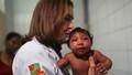 Không phải Zika mà hóa chất diệt muỗi gây teo não?