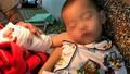 Bàn tay dập nát của bé trai bị thang cuốn kẹp được nối vi phẫu