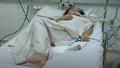 Thêm 2 bệnh nhân nguy kịch do ngộ độc pate Minh Chay