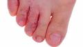 Trời nồm ẩm, cẩn thận bệnh nấm da