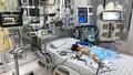 Bé gái 15 tháng tuổi bị biến chứng nặng do mắc bệnh tay chân miệng