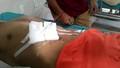 Cứu sống người bị thanh dũa sắt đâm xuyên bụng, thủng gan