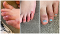"""Bí ẩn những """"ngón chân COVID"""""""