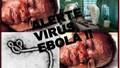 Thứ trưởng Bộ Y tế nói về công tác chuẩn bị đối phó với bệnh dịch Ebola