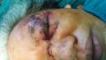 Một phụ nữ bị trâu húc nát vùng mắt trái khi đang cho trâu ăn cỏ