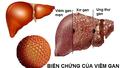 Xét nghiệm mới phát hiện sớm ung thư gan dưới 2cm