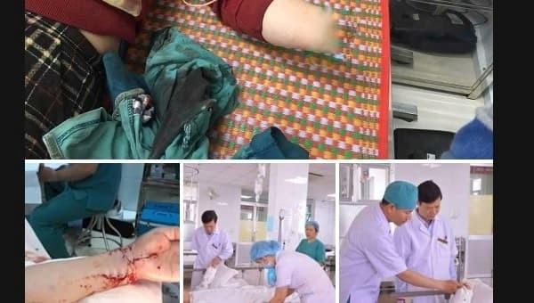 Báo động đỏ toàn bệnh viện, xuyên đêm nối cánh tay đứt lìa cho người phụ nữ