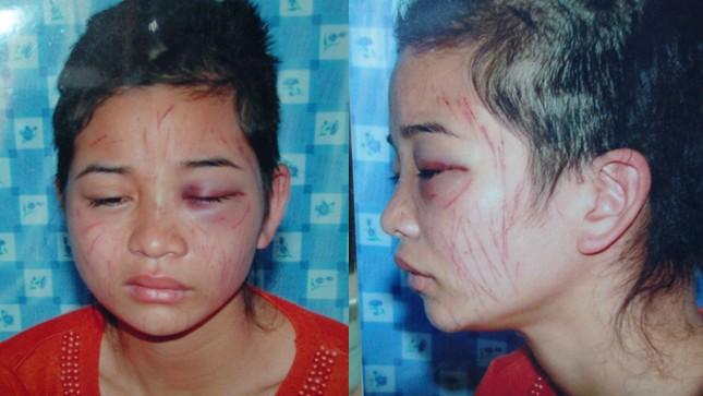 Khuôn mặt chị Hường bị nhiều vết dao lam cứa và mái tóc dài bị cắt nham nhở.