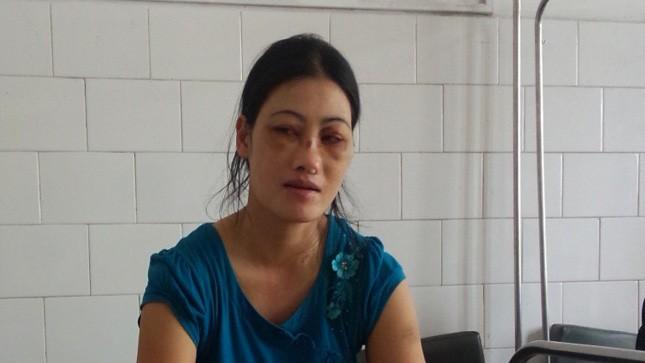 Bấm móng tay... gây ồn, vợ bị chồng đánh dập mũi