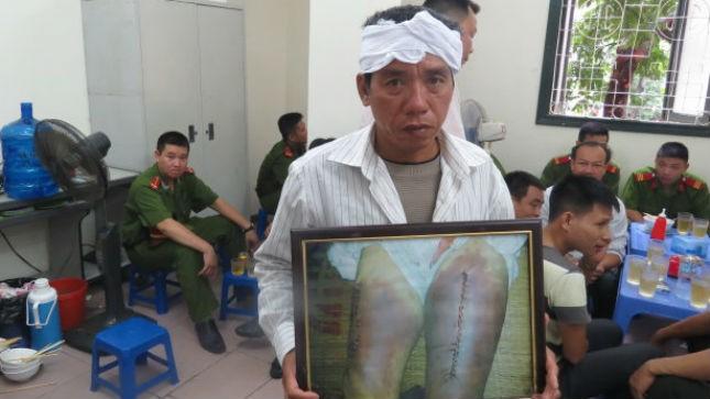 Em trai ông Thuận mang ảnh vết thương của nạn nhân đến phiên toà.