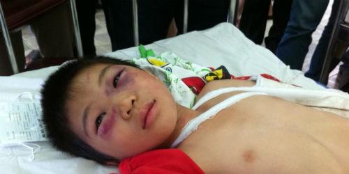 Gia cảnh khốn khổ của bé trai bị cha dượng đánh nứt sọ não