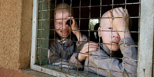 Người bạch tạng  sống ở  các trại tập trung để tránh bị tấn công