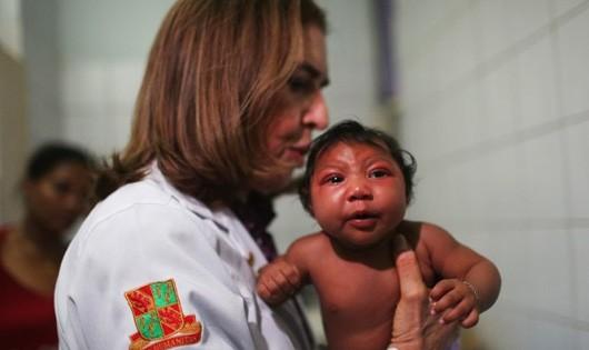 Một nhóm bác sĩ Argentina cho rằng dịch teo não bất thường ở trẻ sơ sinh tại Brazil không phải do virút Zika mà do một loại hóa chất diệt ấu trùng muỗi có trong nguồn nước sinh hoạt - Ảnh: Techtimes