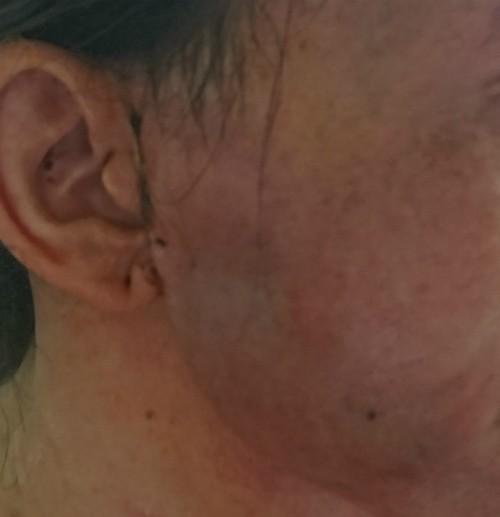 Mặt bệnh nhân sưng tấy đỏ toàn bộ vùng má bên phải lan đến vùng cổ. Ảnh: D.P