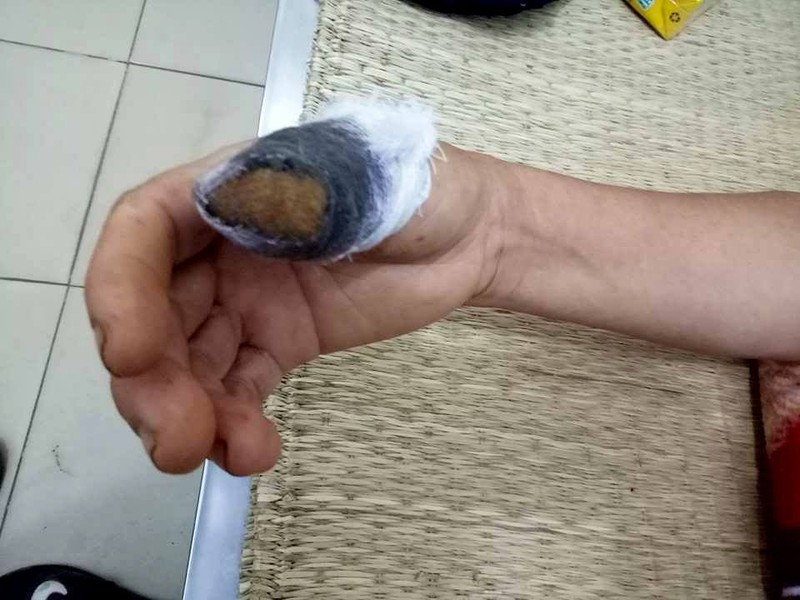 Hái rau mùng tơi nhà hàng xóm, bị cắn đứt một ngón tay