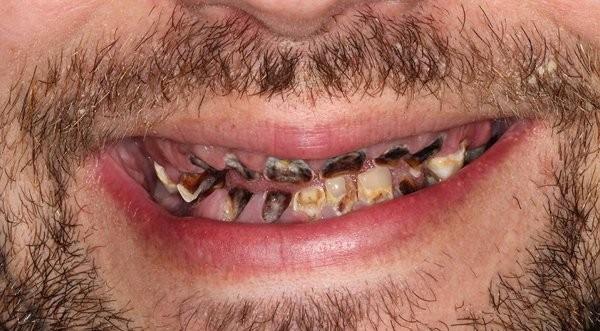 sâu răng,nước ngọt có ga,răng giả