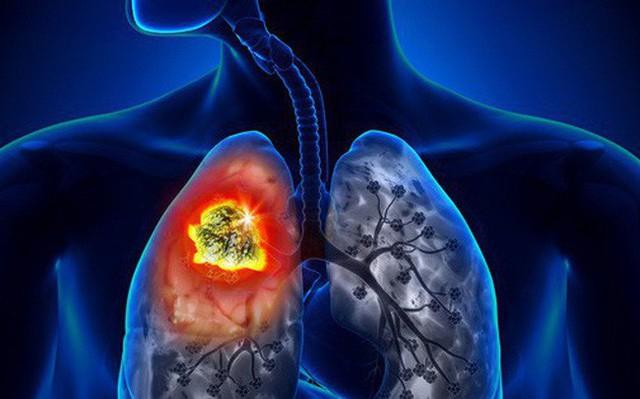 70% bệnh nhân ung thư phổi nam chết do hút thuốc lá.