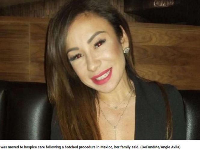 Biến chứng gây phù não sau ca phẫu thuật thẩm mỹ nâng mũi và nâng ngực khiến Laura Avila sống đời thực vật