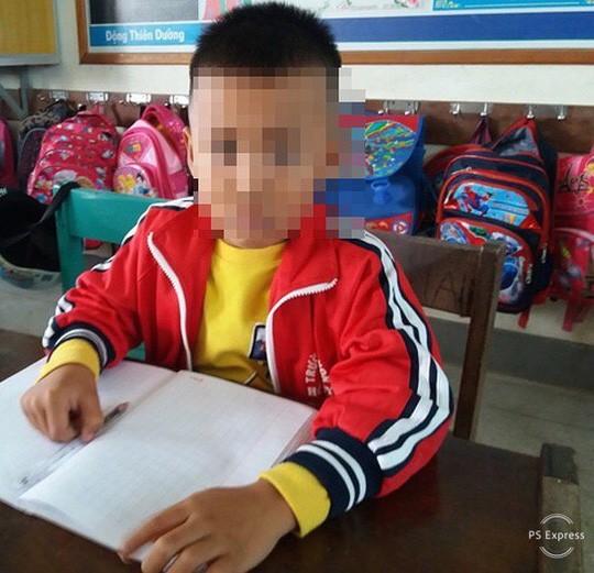 Chép nhầm đề, học sinh lớp 1 bị cô chủ nhiệm tát nhập viện - Ảnh 1.
