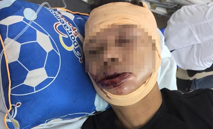 Nạn nhân cấp cứu tại bệnh viện Việt Đức trong tình trạng đa chấn thương.
