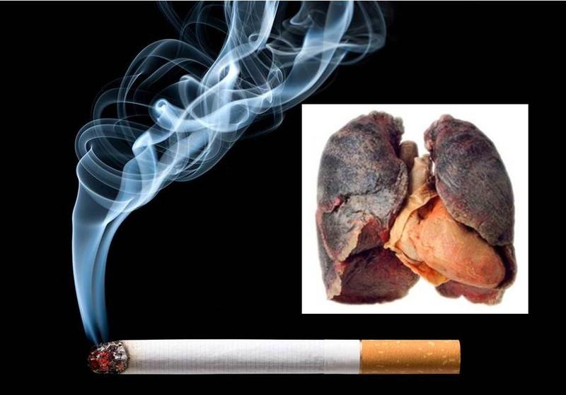 Tim ngừng đập sau nhiều năm hút mỗi ngày một bao thuốc lá