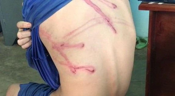 Thiếu niên 12 tuổi bị cha dùng dây điện đánh thương tích khắp người