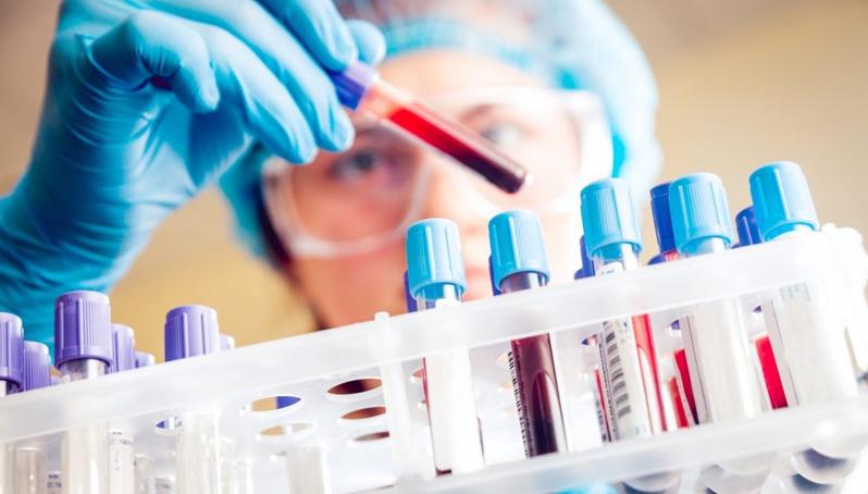 Kết quả xét nghiệm Covid-19 của 120 người ở Quảng Nam liên quan đến bệnh nhân 416 và 418