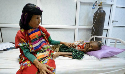 Hàng triệu người Yemen nguy cơ chết đói