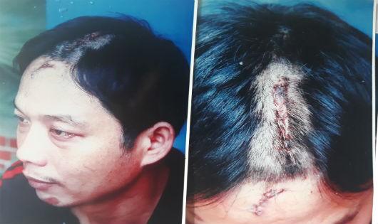 Nghệ An: Chém người tổn hại 12% sức khỏe, sao chưa khởi tố?