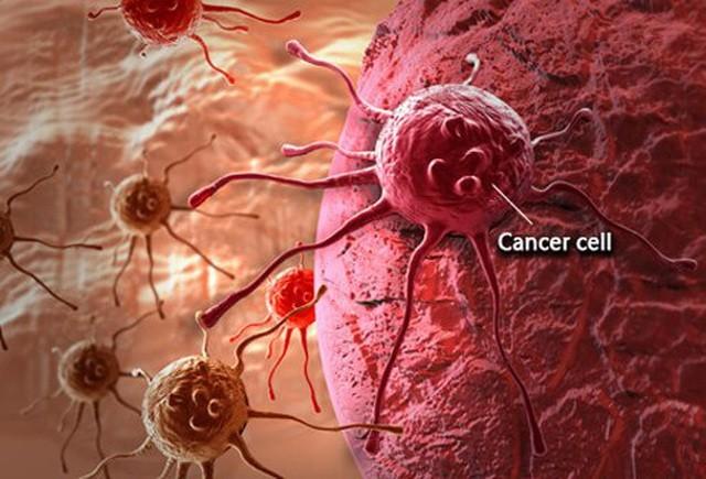 Giảm cân- dấu hiệu quan trọng cảnh báo ung thư - 1