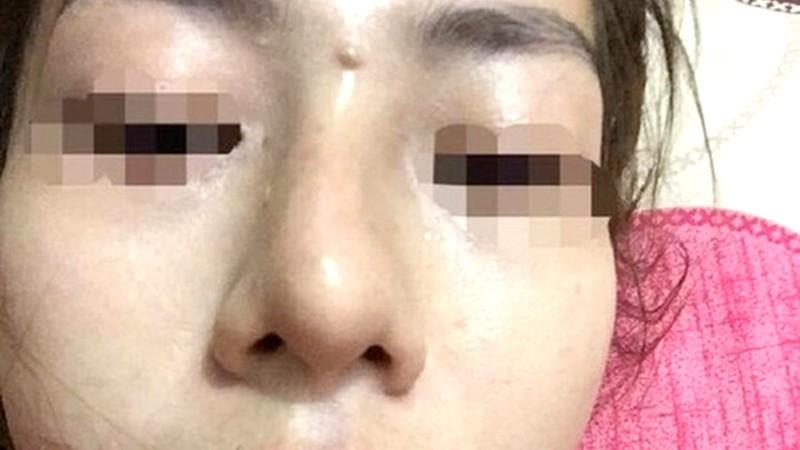 Vụ bé gái 13 tuổi tổn hại 42% sức khỏe khi đi nâng mũi: Vì sao chủ tiệm Spa chỉ bị xử phạt hành chính?