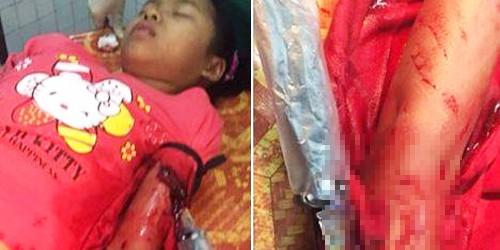 Nạn nhân đang cấp cứu tại bệnh viện sau khi rút dao ra khỏi tay