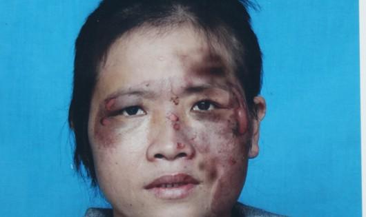 Bị chồng bạo hành dã man vì tham gia đa cấp?