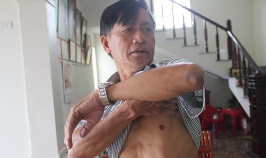 Ông Huệ tố bị chủ tịch xã vác ghế đánh vào hông tại trụ sở ủy ban xã