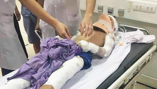 Quét dọn trên tầng thượng, bé trai 12 tuổi bị phóng điện phải tháo hai cánh tay