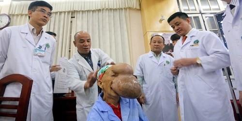 Phẫu thuật thành công khối u 4kg trên mặt cụ bà