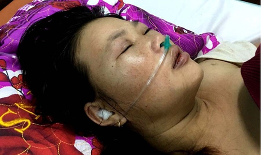Ngăn chồng đến nhà bạn gái lúc nửa đêm, vợ mới sinh bị đánh nhập viện