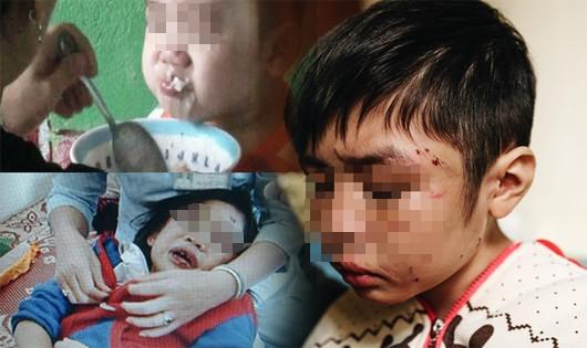 Chính phủ yêu cầu xử lý nghiêm hành vi bạo hành trẻ em