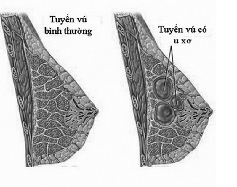 U xơ tuyến vú là một bệnh lành tính.