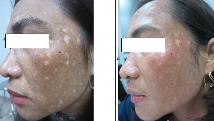 Sau một tháng có da đẹp như Ngọc Trinh, nữ bệnh nhân bắt đầu xuất hiện các đốm trắng, đen trên da.