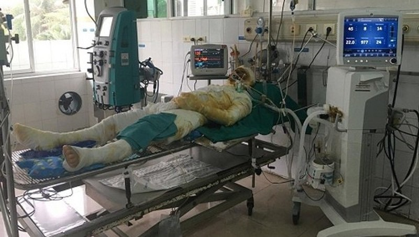 Lấy nước mắm, mỡ trăn chữa bỏng, ruồi nhặng theo bệnh nhân vào tận viện - Ảnh 1.