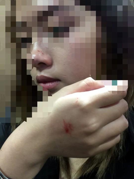 Nữ sinh viên bị cưỡng hôn trong thang máy lên tiếng sau khi làm việc với công an - Ảnh 2.