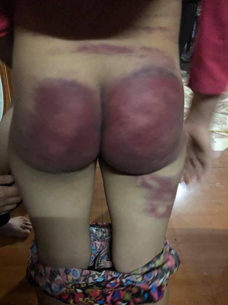 Bé Nhung bị cha đẻ đánh bầm dập cơ thể. Ảnh: Lam Sơn.