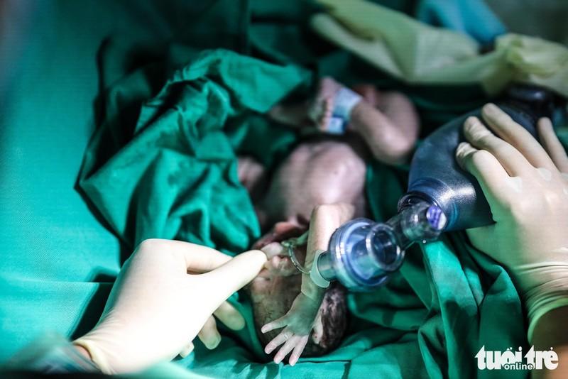 Xúc động ca mổ đặc biệt đón bé sơ sinh từ người mẹ ung thư giai đoạn cuối - Ảnh 8.