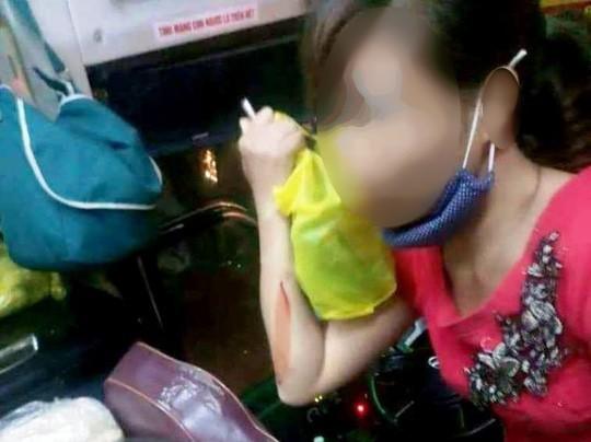 Truy tìm nhóm lạ mặt ném vỡ kính xe khách ở Thanh Hóa làm 1 phụ nữ bị thương - Ảnh 2.