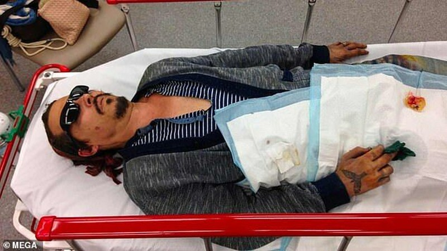 Johnny Depp bị thương ở tay và mặt vào tháng 3/2015.