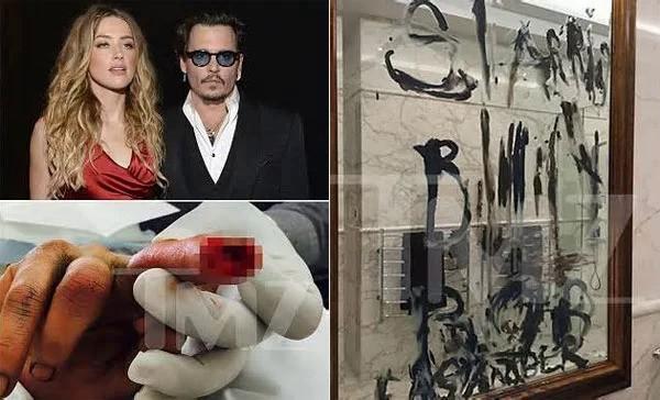 Amber từng cung cấp bức ảnh Johnny Depp bị cắt lìa ngón tay vào năm 2015 nhưng khẳng định đó là do anh đã tự ném điện thoại gây thương tích. Johnny sau đó dùng máu và dầu viết đầy chữ lên tường.