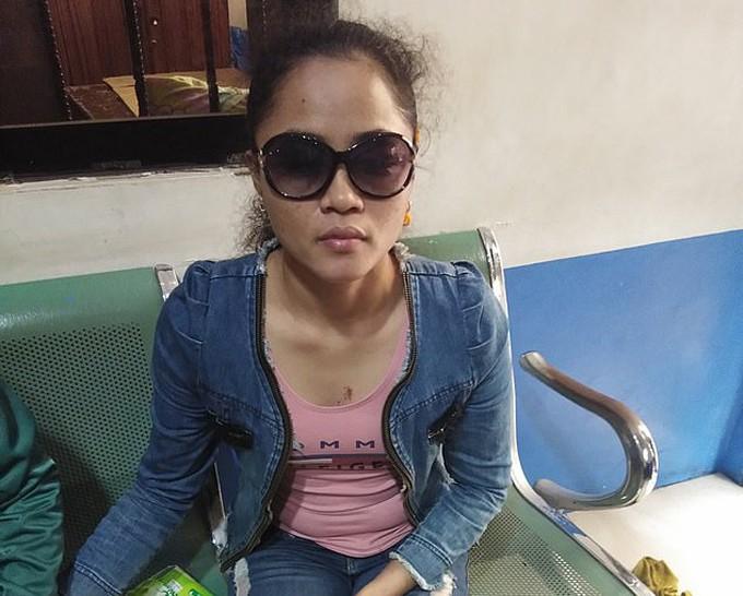Glory Cuerda (27 tuổi) hiện bị mù cả hai mắt sau khi bị tạt axit tại thành phố Pasay, Philippines hồi cuối tháng 7. Ảnh: Viral Press.