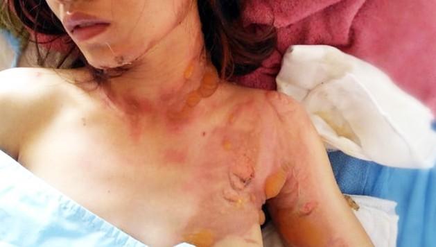 Cô gái trẻ bị người đàn ông chặn xe, tạt xăng đốt trên đường