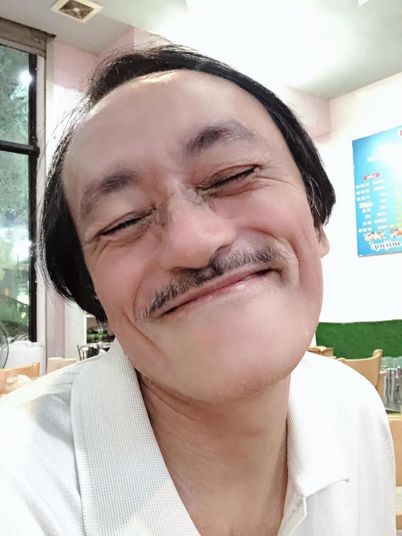 Cuộc sống sau khi phát hiện ung thư hạ họng của nghệ sĩ Giang Còi ra sao? ảnh 4